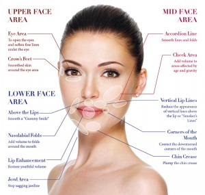 Where can fillers be used?